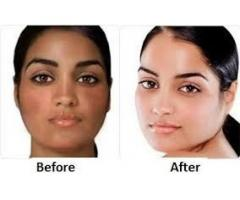 Best Skin Lightening Pills For Dark Skin+27685371867.